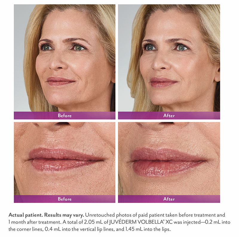 Lip Enhancement Non-Surgical - The Martin Center | Mobile