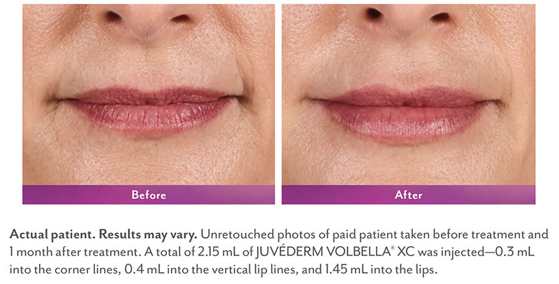 Lip Enhancement Non-Surgical - The Martin Center   Mobile