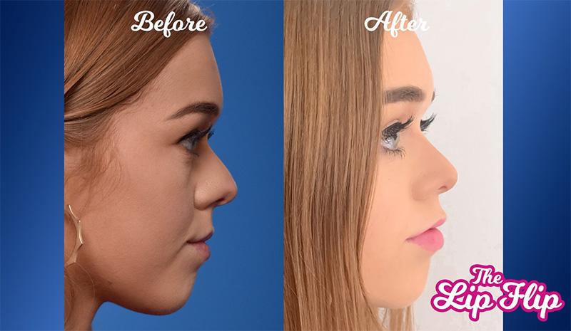 lip-flip-before-after-mobile-alabama